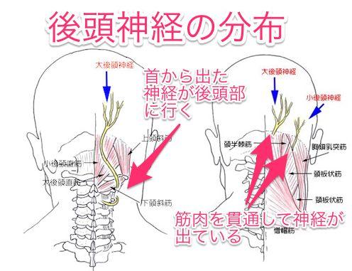 頭痛の改善治療|若山台鍼灸整骨院(大阪 島本町・水無瀬)